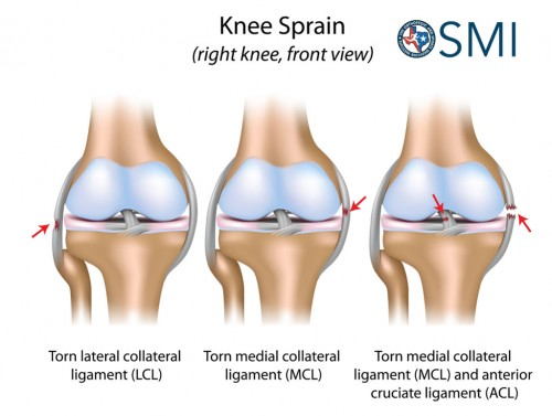 Knee Injuries and Their Symptoms