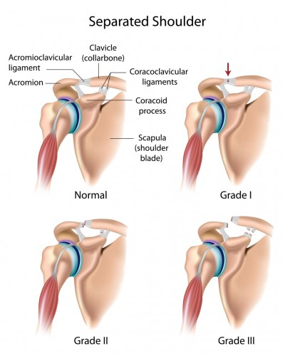 Shoulder Separation (AC Separation) separated shoulders  OSMI
