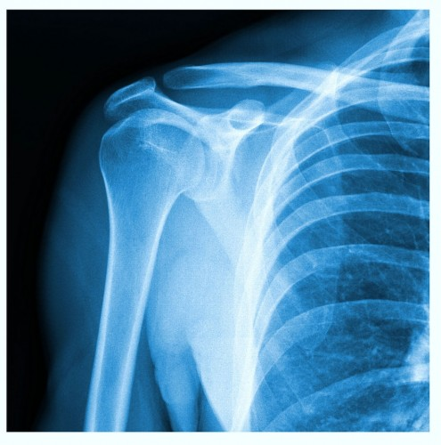 Shoulder Separation (AC Separation)  xray OSMI Dr Boothby