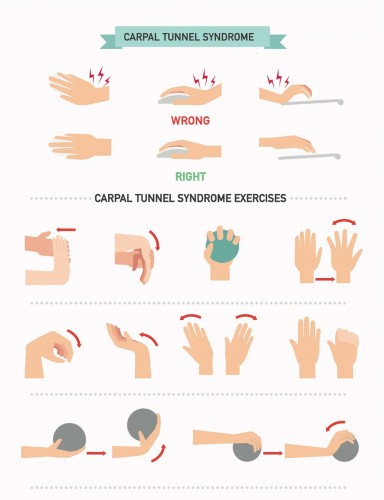 Cubital Tunnel Syndrome Exercises Pictures to Pin on ...