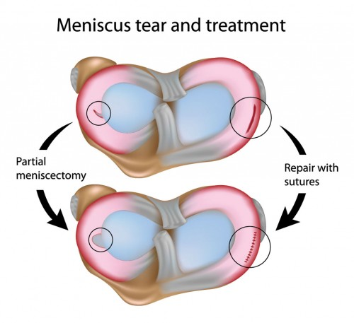 knee meniscal tear