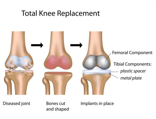 knee joint replaced