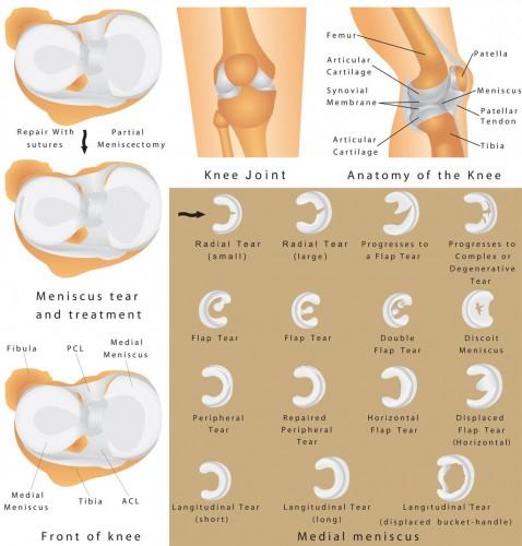Meniscal Tear of the Knee