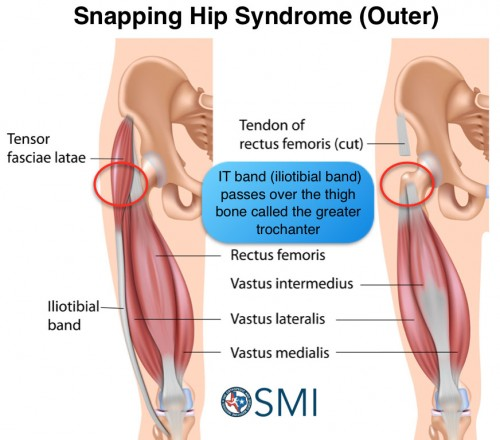 External Snapping Hip