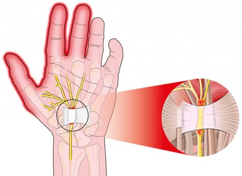 Carpal Tunnel Syndrome OSMI treats cts