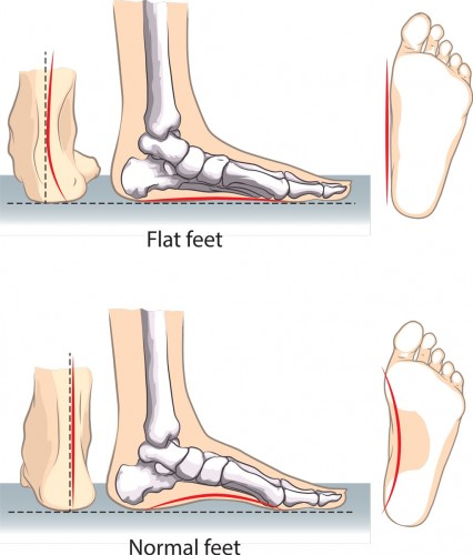 OSMI treatment for flat feet