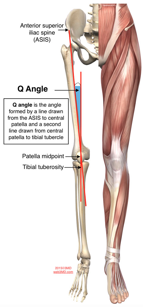 patellar femoral pain syndrome wide q angle
