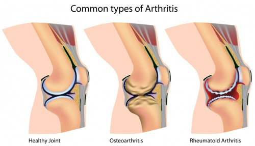 osteoarthritis in athletes
