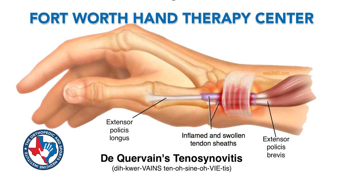 OSMI Hand Therapy treat De Quervain's tenosynovitis