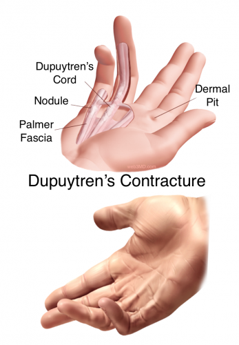 dupuytren's contracture fort worth hand therapy center, Skeleton