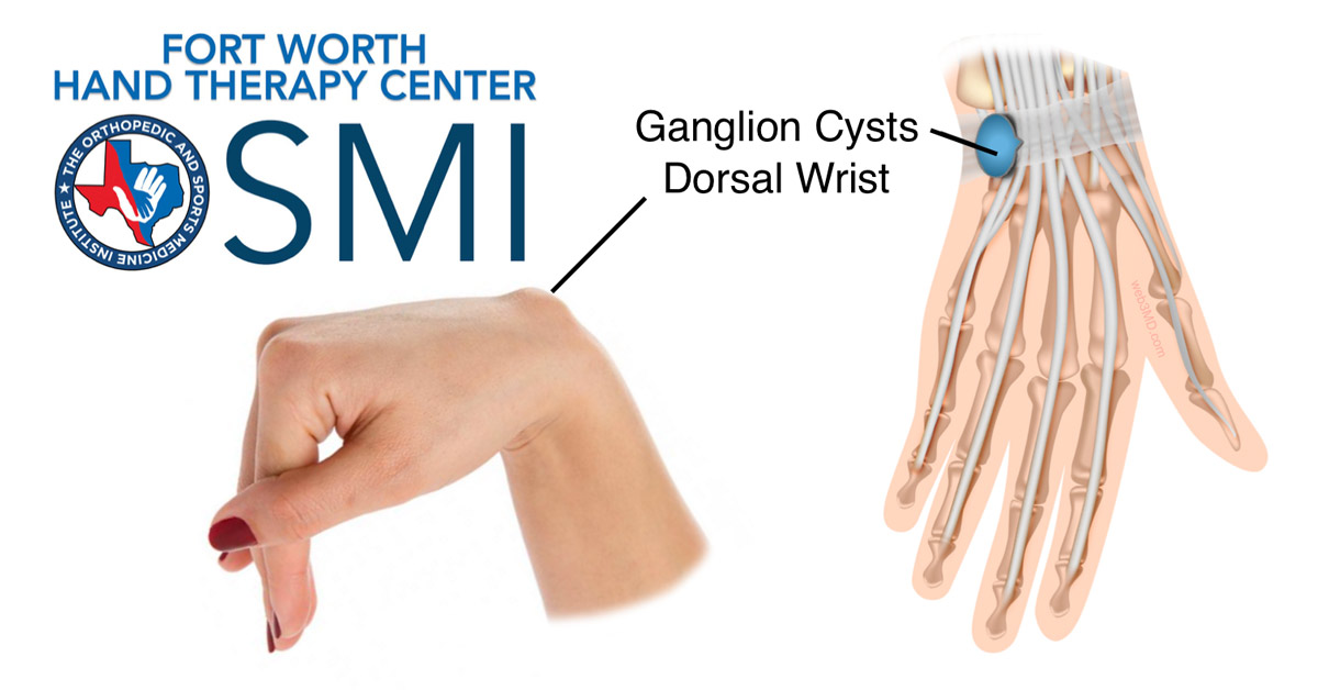 ganglion cyst dorsal wrist fort worth, Skeleton