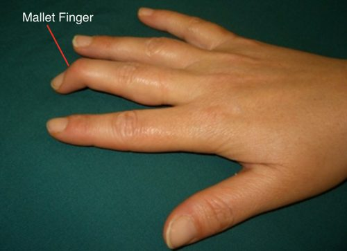 mallet finger fort worth orthopedics and sports medicine
