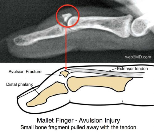 Mallet finger is an injury to the thin tendon