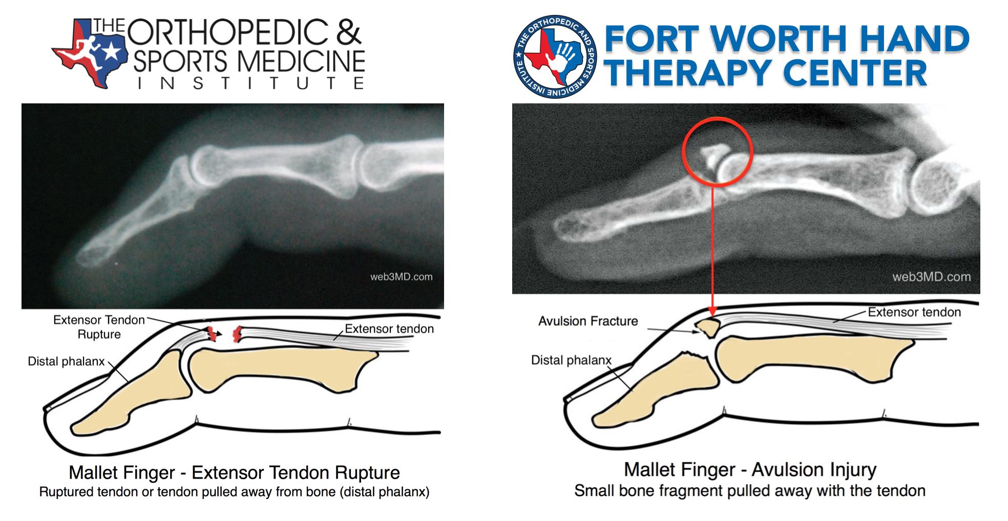 hand tendon treatment