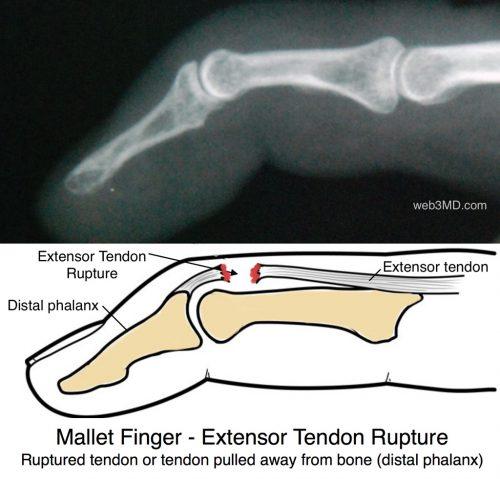 Mallet Finger extensor tendon rupture