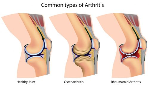 Knee Replacement Surgery (Knee Arthroplasty) for arthritis