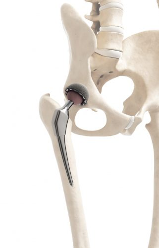 Hip Replacement – Arthroplasty – Fort Worth