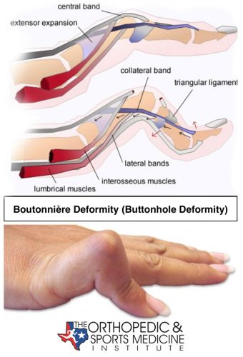 Boutonnière deformity (also called buttonhole deformity) affects the tendons of the finger