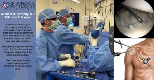 Arthroscopy: Minimally Invasive Orthopedic Joint Surgery