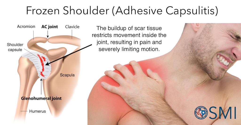 Frozen shoulder, or adhesive capsulitis