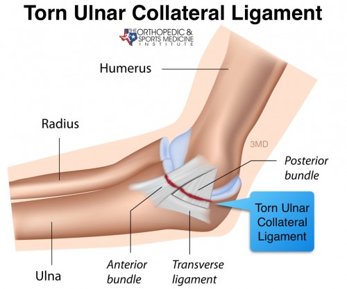 UCL tear repair atBy Dr Boothby