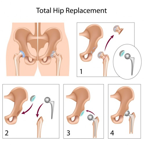 hip joint replacement and physical therapy