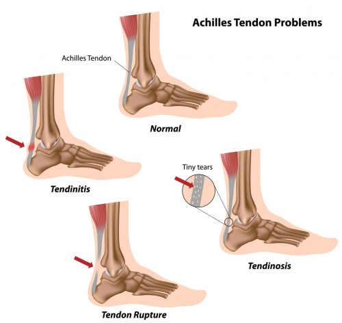 Ankle and Foot Trauma