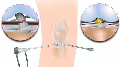 DR Boothby Fort Worth Knee arthroscopist