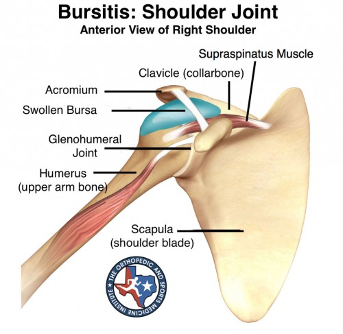 Shoulder Tendonitis OSMI treats Bursitis