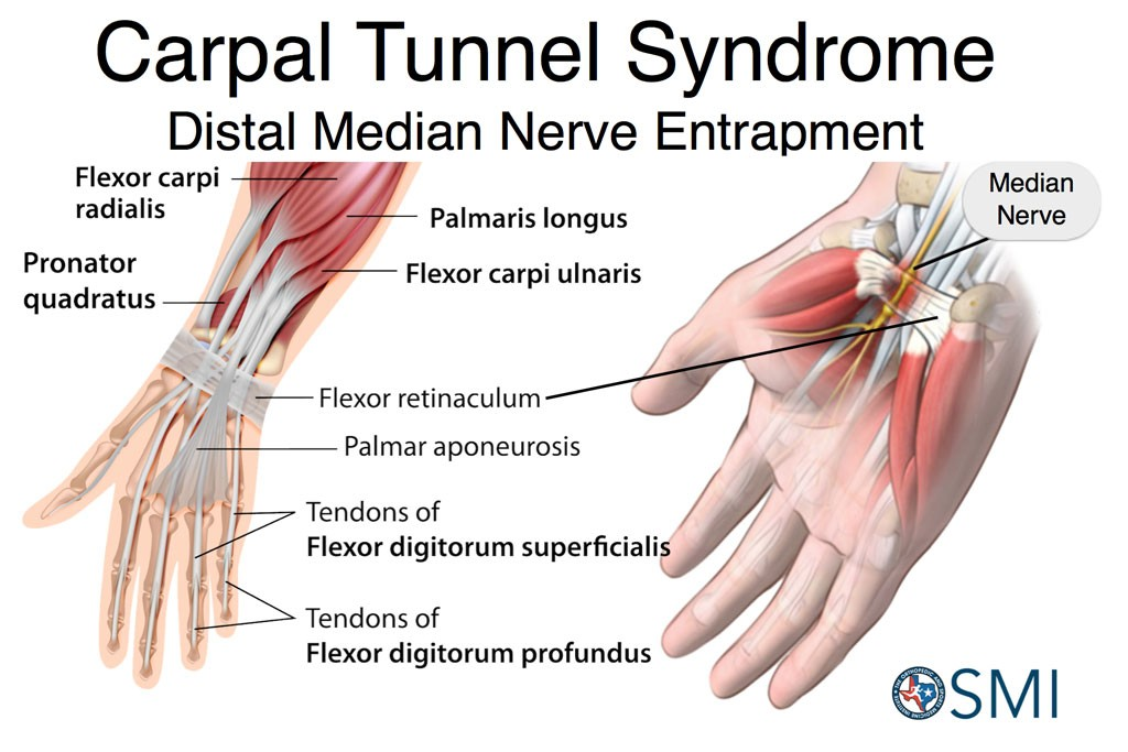 Dr Boothby treats CTS Carpal Tunnel Syndrome