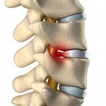 lumbar lower back spine herniated disc