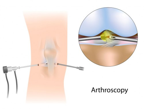 knee Arthroscopy: Minimally Invasive Orthopedic Surgery
