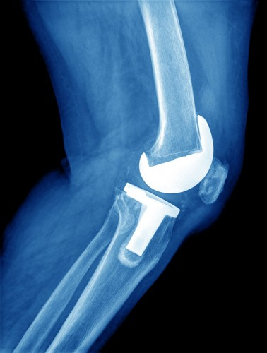 joint replacement of the knee