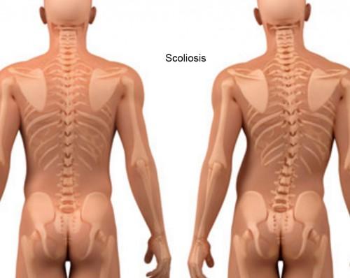 spine curvature