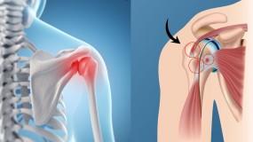 shoulder impingement rotator cuff injury shoulder