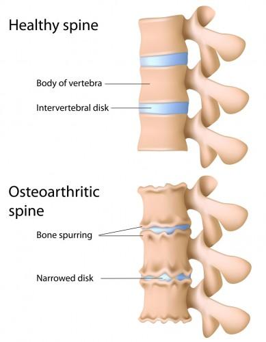 spine-osteoarthritis