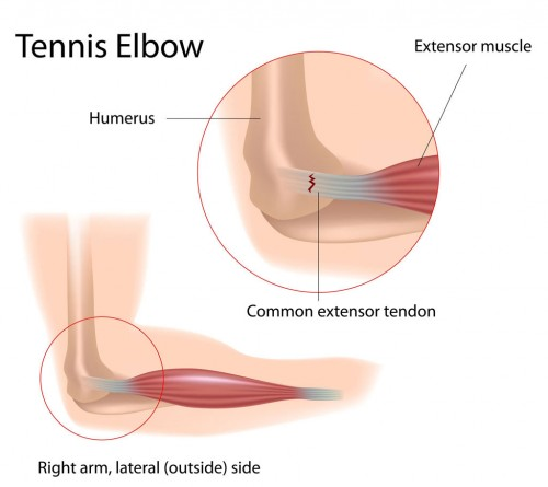 injury to the outer elbow tendon