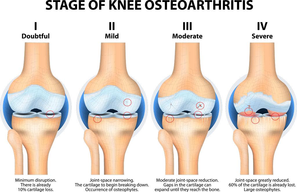 Understanding arthritis in athletes