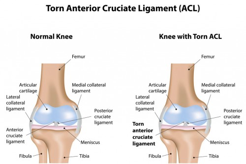 Torn ACL Injuries -Anterior Cruciate Ligament