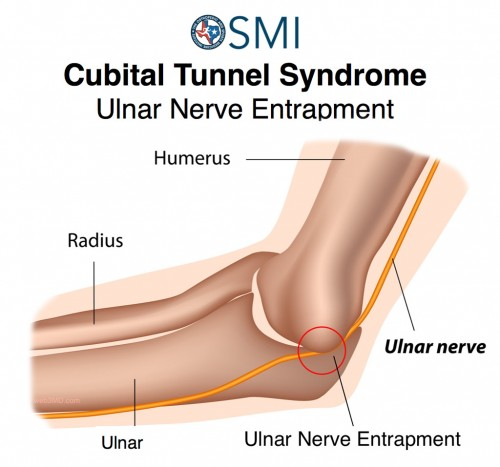 Cubital Tunnel Syndrome  Ulnar Nerve Entrapment