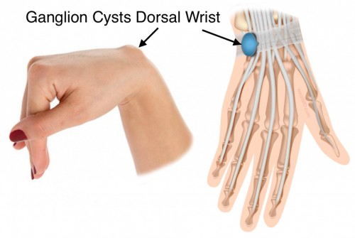 OSMI treats ganglion cysts