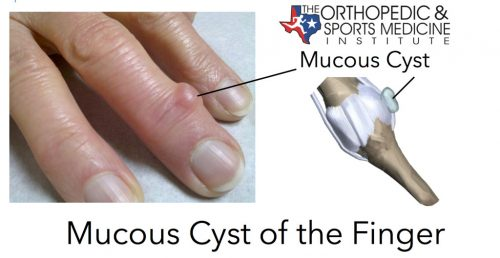 Mucous cyst of the finger