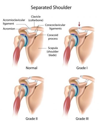 Shoulder arthroscopy is a useful tool in diagnosing any abnormalities within the shoulder joint.