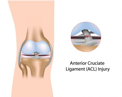 Conditions Treated by Knee Surgeon DR Boothby Fort Worth Knee surgeon treats Arthroscopic Anterior Cruciate Ligament (ACL) Reconstruction