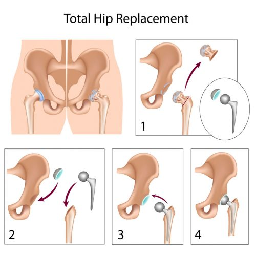 Total Hip Replacement and Minimally Invasive Hip Replacement