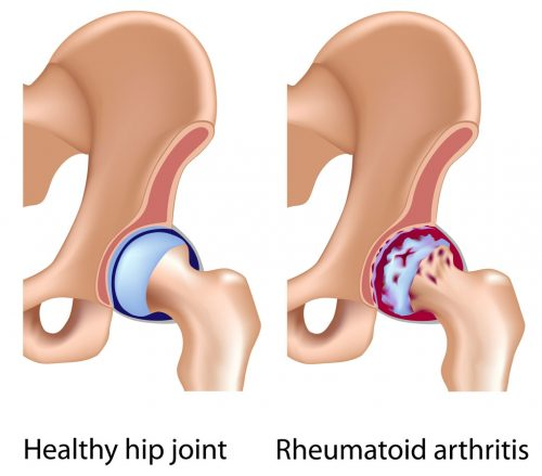 Hip Replacement – Arthroplasty – Fort Worth for rheumatoid arhtritis