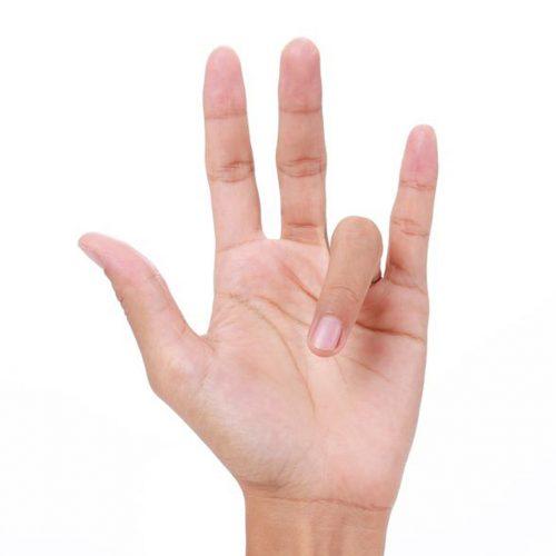 Trigger finger, also called stenosing tenosynovitis treatment Fort Worth OSMI