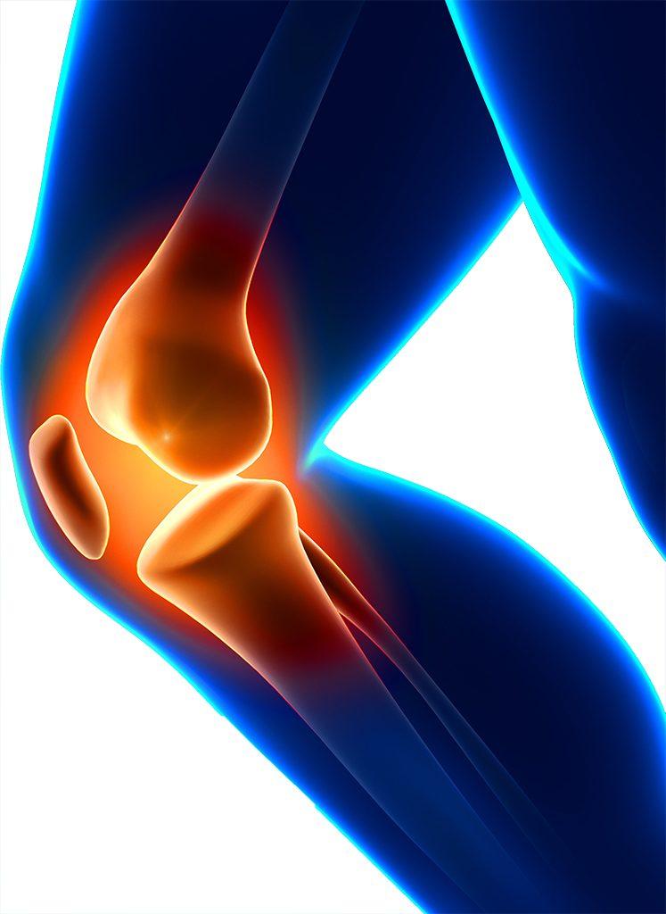 What is Adolescent Anterior Knee Pain?