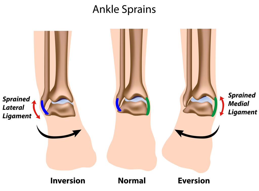 Ankle Sprains, Strains, and Fractures