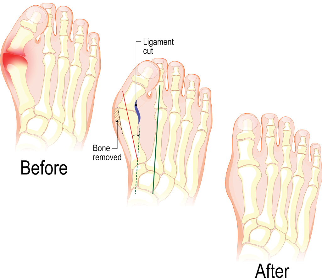 Bunions: When the joint at the base of the big toe becomes enlarged, the bone and/or tissue can move out of place, changing the shape of the foot.